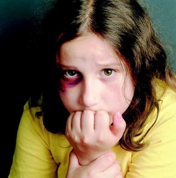 abusedgirl