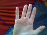 Trapeze Hands after 5 shows in a row, with no prior conditioning