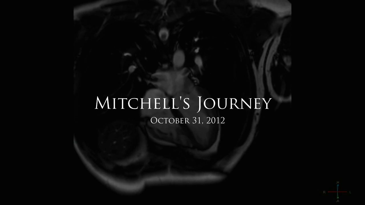 Mitchell's Journey - Photo Essay: Facing The Darkness