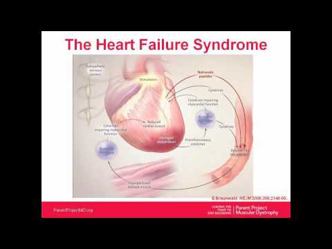 Webinar: Cardiac Interventions