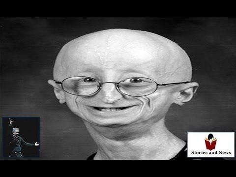 Sam Berns Progeria story old teen with child eyes