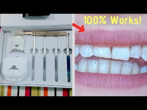 Proof The Billionaire teeth whitening Kit Works In Just 7 Days! :0