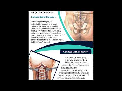 Best Hospitals for spine surgery in India | Top spine surgeon in India
