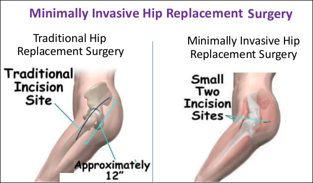 Minimally Invasive Hip Replacement Surgery in India
