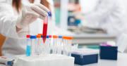 Webinar: BMS Anti-Myostatin Adnectin Program