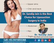Dr. Sandip Jain is the Best Choice for Liposuction Surgery in India