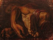 "study of Gericault's""study of truncated limbs"""