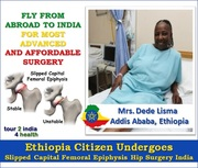 Ethiopia Citizen Undergoes Hip Slipped Capital Femoral Epiphysis Surgery India