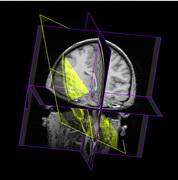 Neurology 2
