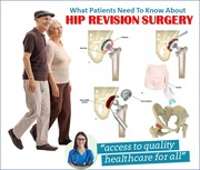 What Patients Need To Know About Hip Revision Surgery?