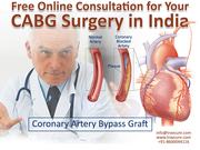Free Online Consultation for Your CABG Surgery in India