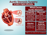 Aortic Stenosis Surgery in India is Highly Affordable