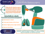 Avail Affordable CyberKnife Radiosurgery for Lung Cancer