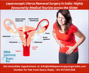Laparoscopic Uterus Removal Surgery in India Highly favoured by Medical Tourists across the Globe
