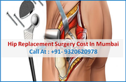 Hip Replacement surgery cost In Mumbai