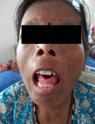 Systemic Sclerosis: A case report with review