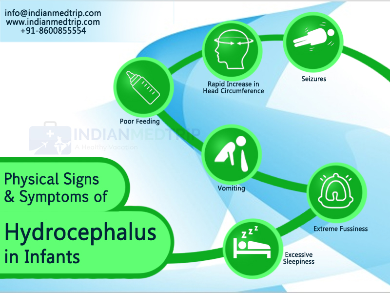 Physical Signs & Symptoms of Hydrocephalus in Infants