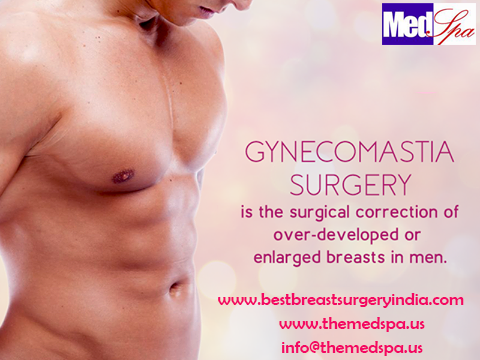 Male breast reduction gaining popularity; fastest growing cosmetic surgery in Delhi, INDIA