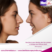 Nose Job Cosmetic Surgery in Delhi, India