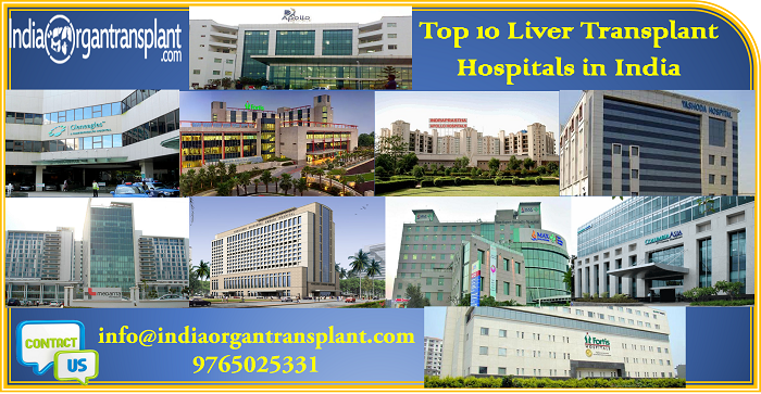 Top 10 Liver Transplant Hospitals in India with state of art facilities attract gloabl patients all across the world