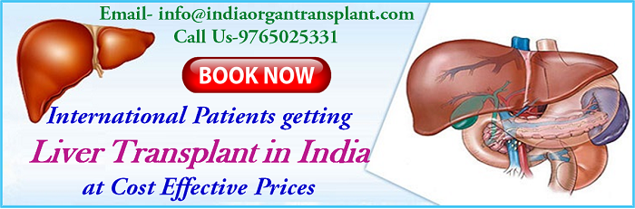 International Patients getting Liver Transplant in India at Cost Effective Prices