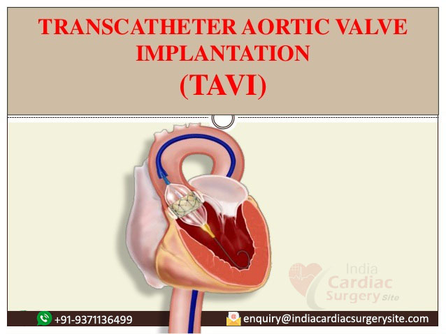 Trans Aortic Valve Implantation In India