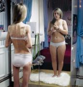 Boulimie et anorexie