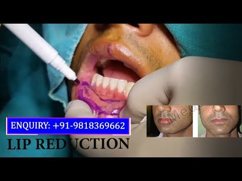 Lip Reduction Surgery Results by Dr. Ajaya Kashyap, Delhi, India