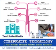 Cyberknife Technology : Advanced Robotic Cancer Treatment
