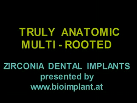 WORLD'S FIRST TRULY ANATOMIC MULTI-ROOTED ZIRCONIA DENTAL IMPLANT SOLUTION