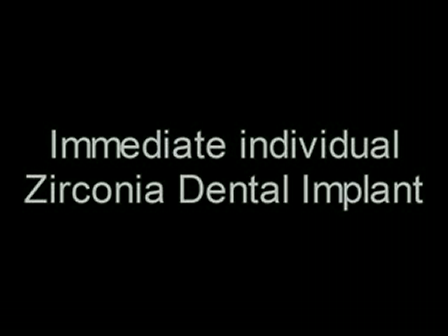 WORLD'S FIRST IMMEDIATE ROOT ANALOG ZIRCONIA DENTAL IMPLANT