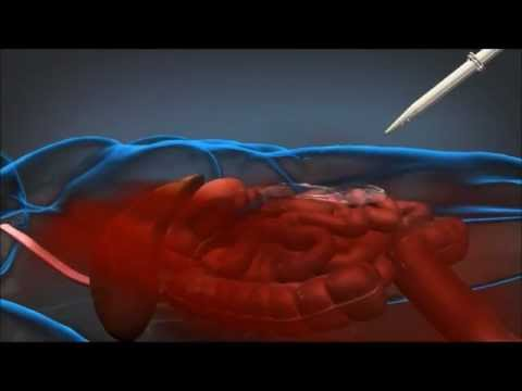 DARPA's Wound Stasis Technology Could Save Lives