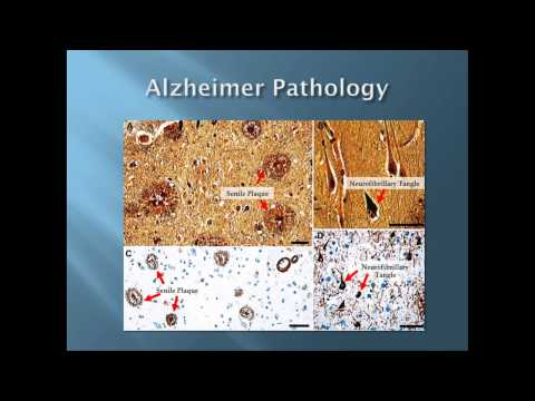 TEDxAlamo - George Perry -  Living with Aging: Alzheimer's, the Disease of Our Time