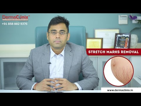 Stretch Marks Removal Treatment in Delhi - DermaClinix | Dr Amrendra Kumar, MD