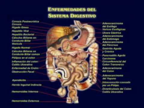Lista de Aceites y Leche que dan Cancer Part.3