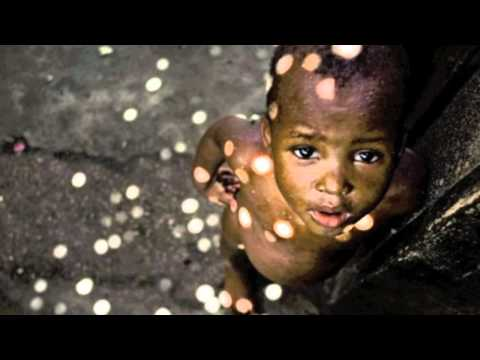 World Hunger - UNICEF