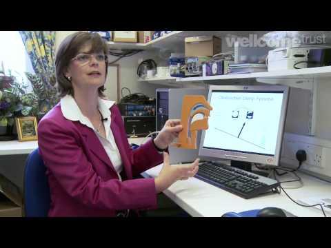 Understanding Obstructive Sleep Apnoea (HD)   A film by the Wellcome Trust