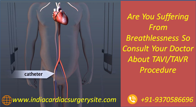 Are You Suffering From Breathlessness So Consult Your Doctor About TAVI And TAVR Procedure