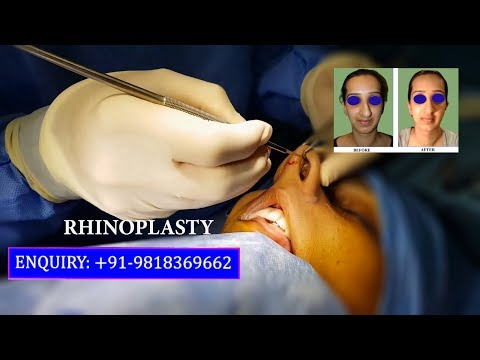 Low Cost Rhinoplasty Surgery in Delhi, India (Nose Job) by Dr Ajaya Kashyap