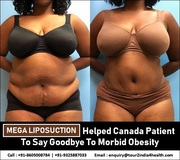 Mega Liposuction Helped Canada Patients To Say Goodbye To Morbid Obesity