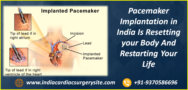 Pacemaker Implantation in India Is Resetting your Body And Restarting Your Life
