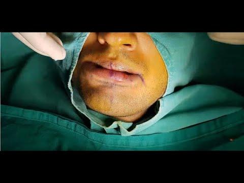 Lip Reduction by US Board Certified Plastic Surgeon Ajaya Kashyap, Delhi, India
