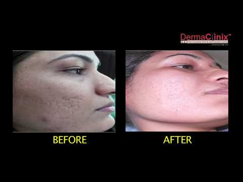 Fractional Laser Resurfacing Treatment in Delhi @DermaClinix