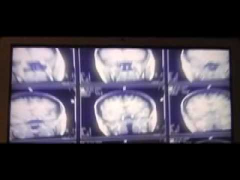 Vatican Sex Scandal Christophrenic Pope & Neurology 04710.mov