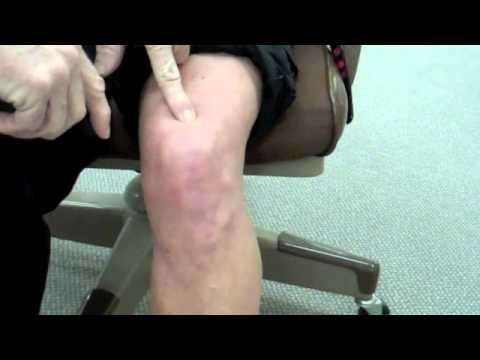 Fix Sore Knee
