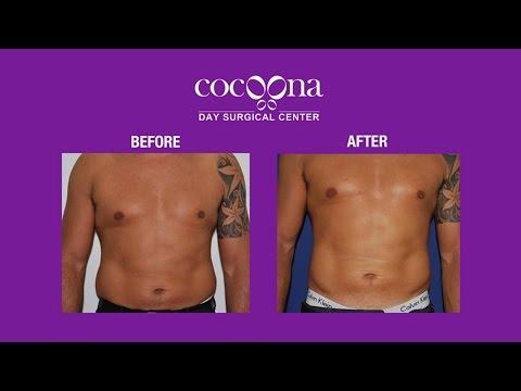 High Definition VASER Liposuction by Dr. Sanjay Parashar