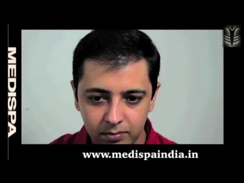 Hair Transplant  Story - Medispa Hair Restoration India - Jaipur-Delhi -UK -US -UAE