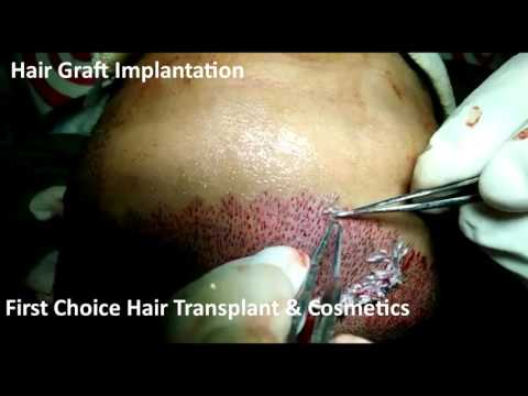 Hair Graft Implantation at FCHTC hair transplant clinic in Ludhiana...