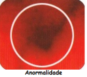 seio anormal
