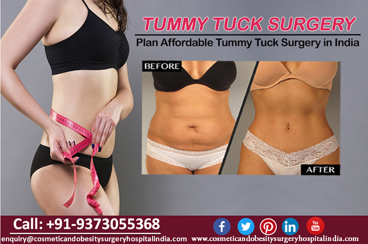 Plan Affordable Tummy Tuck Surgery in India